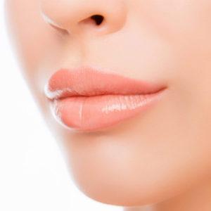 viršutinės lūpos fotoepiliacija